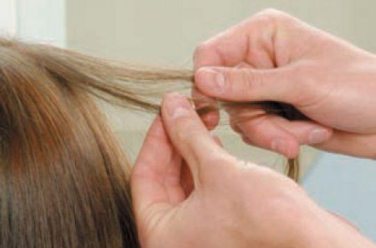 Схема роста волос на голове